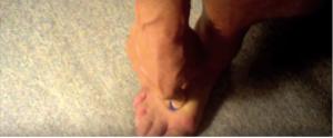 pijat akunpuntur kaki